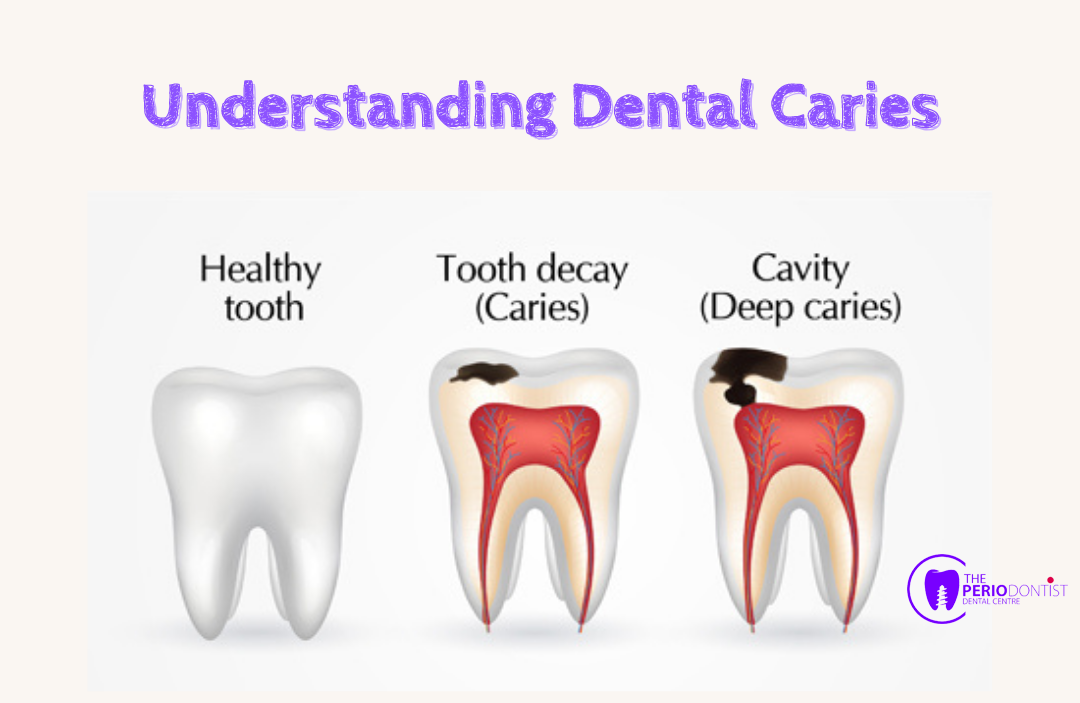 Understanding_Dental_Caries