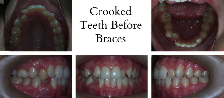 crooked teeth before braces