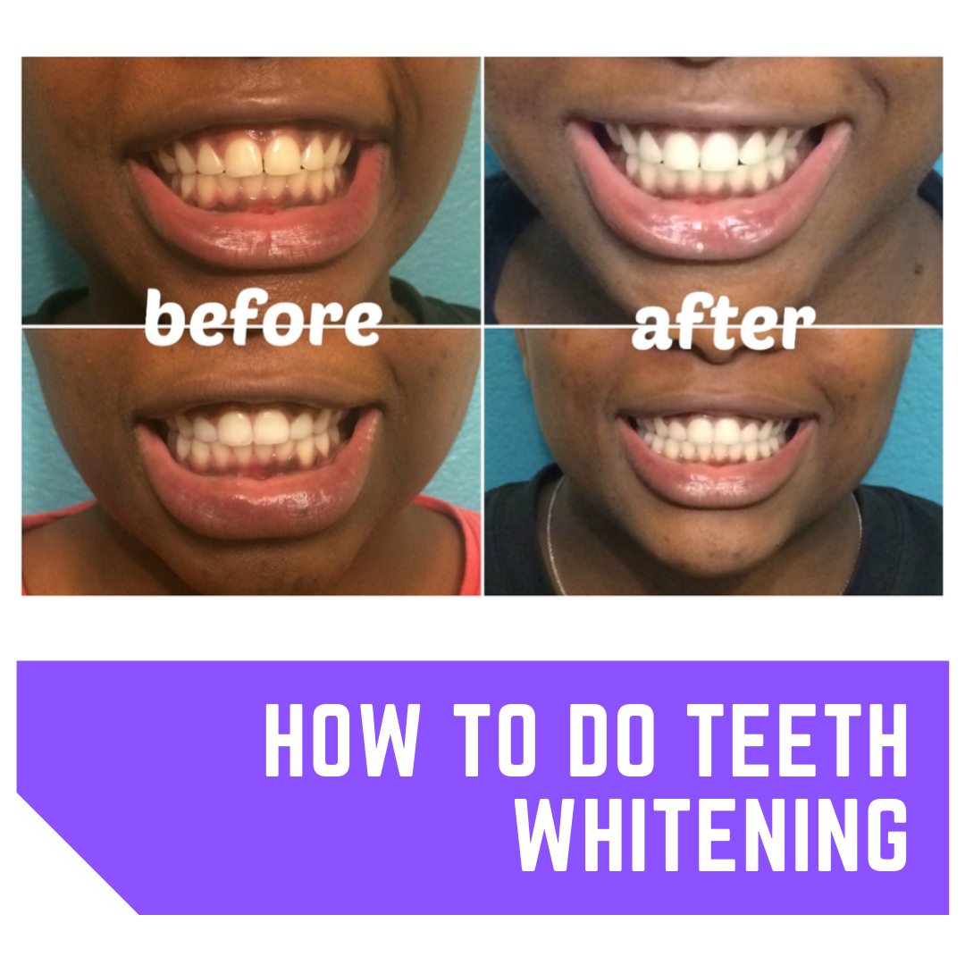teeth whitening before after theperiodontist.co.ke